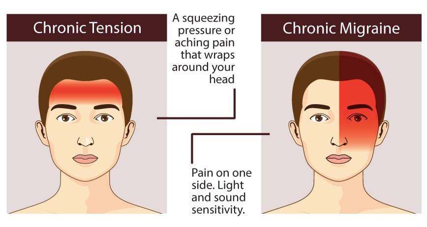 pain-management-tools-headache-locations-tension-migraine